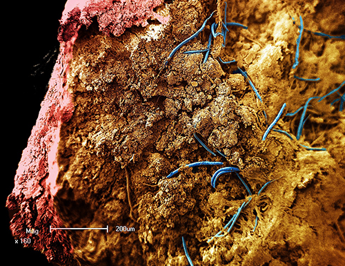 Deep Life Not Limited to Microbes: Earthquakes Move Surface Animals to the Deep